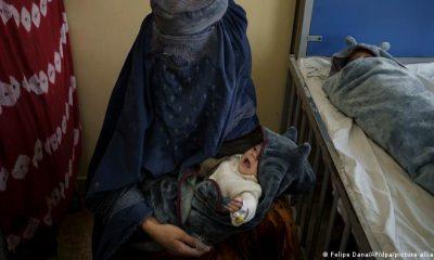 Una mujer con su hijo en un centro de atención a menores desnutridos en Afganistán. Foto: Picture Aliance.