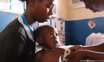 Un empleado de una organización de ayuda humanitaria mide la circunferencia del brazo de un niño desnutrido en Madagascar. Foto: Picture Aliance.